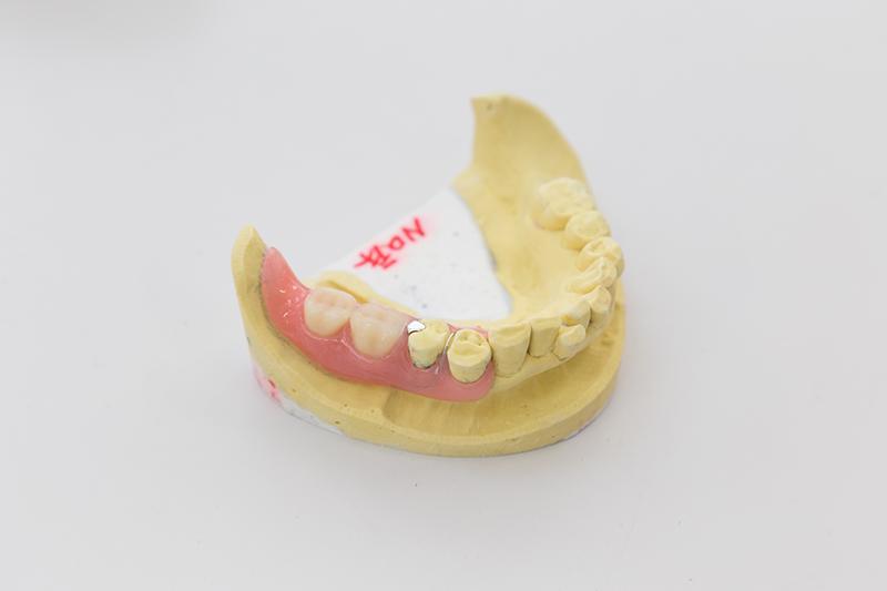 自費の入れ歯について